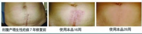 菏泽安全无痛完美修复剖腹产疤痕增生痒痛