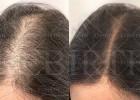 韩国轻增发,头发稀疏加密,脱发增补,发际线后移增补