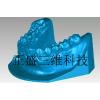 供应牙模3D扫描仪 假牙三维扫描仪 义齿三维扫描仪 定制牙齿